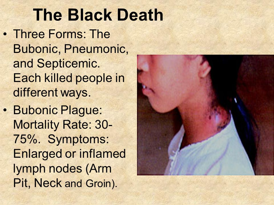 The Black Death Three Forms: The Bubonic, Pneumonic, and Septicemic. Each killed people in different ways.