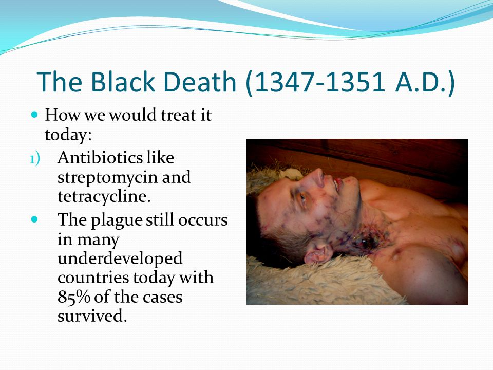 The Black Death (1347-1351 A.D.) How we would treat it today: