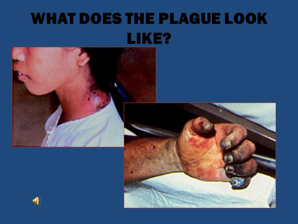 WHAT DOES THE PLAGUE LOOK LIKE