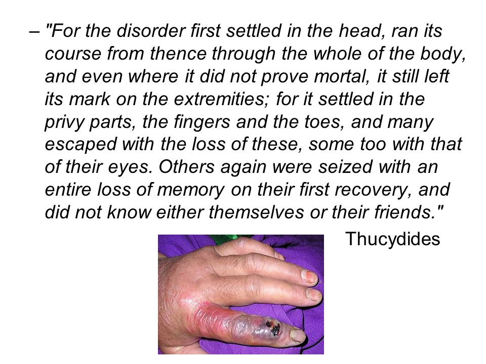 For the disorder first settled in the head, ran its course from thence through the whole of the body, and even where it did not prove mortal, it still left its mark on the extremities; for it settled in the privy parts, the fingers and the toes, and many escaped with the loss of these, some too with that of their eyes. Others again were seized with an entire loss of memory on their first recovery, and did not know either themselves or their friends.