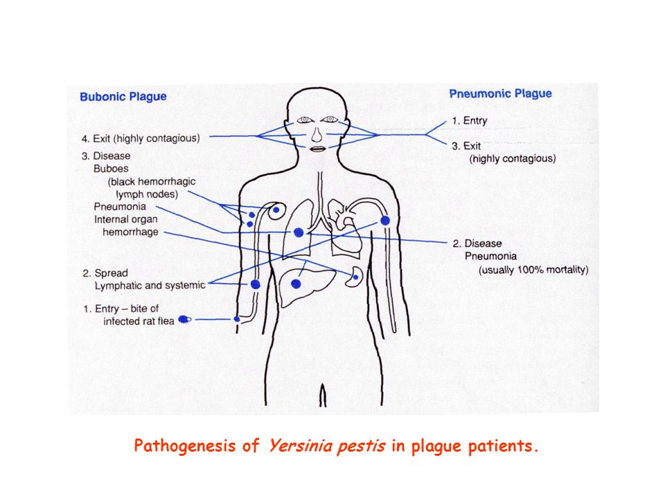 Pathogenesis of Yersinia pestis in plague patients.
