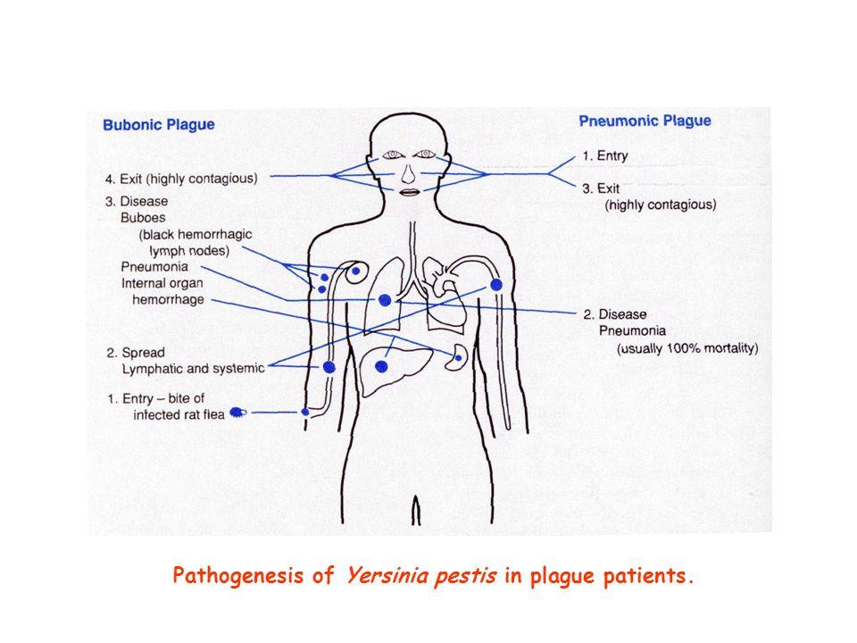 Pathogenesis of Yersinia pestis in plague patients.