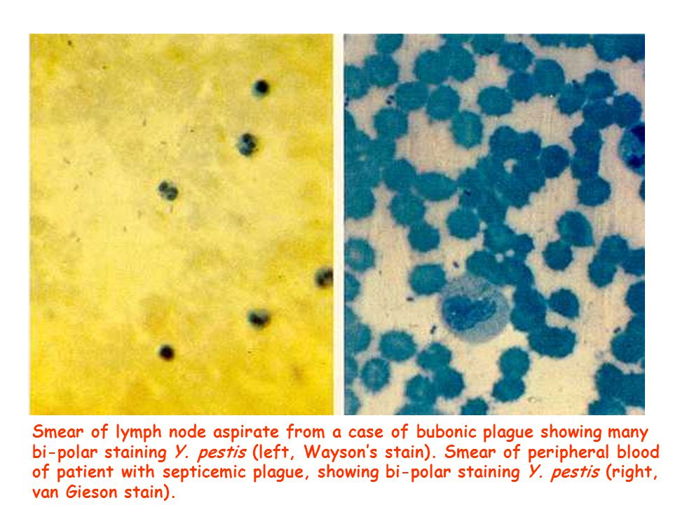 Smear of lymph node aspirate from a case of bubonic plague showing many