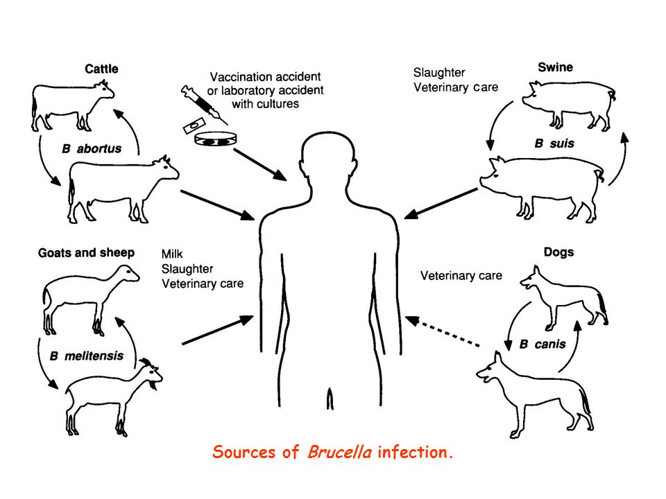 Sources of Brucella infection.