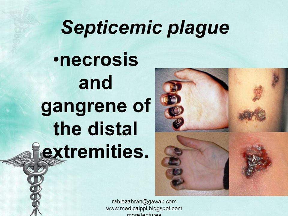 necrosis and gangrene of the distal extremities.