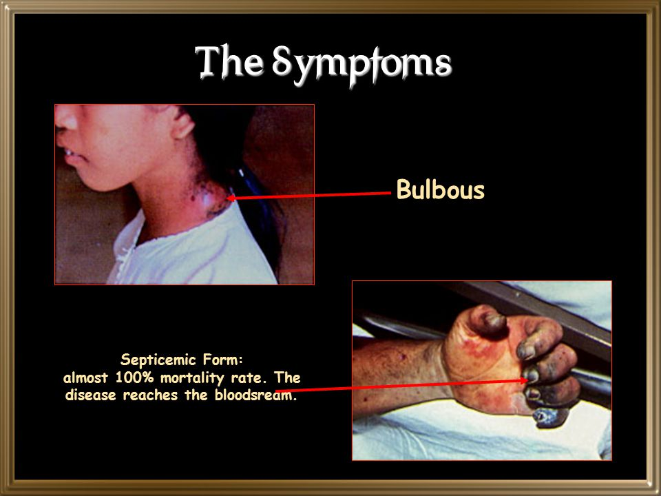 The Symptoms Bulbous. Septicemic Form: almost 100% mortality rate.
