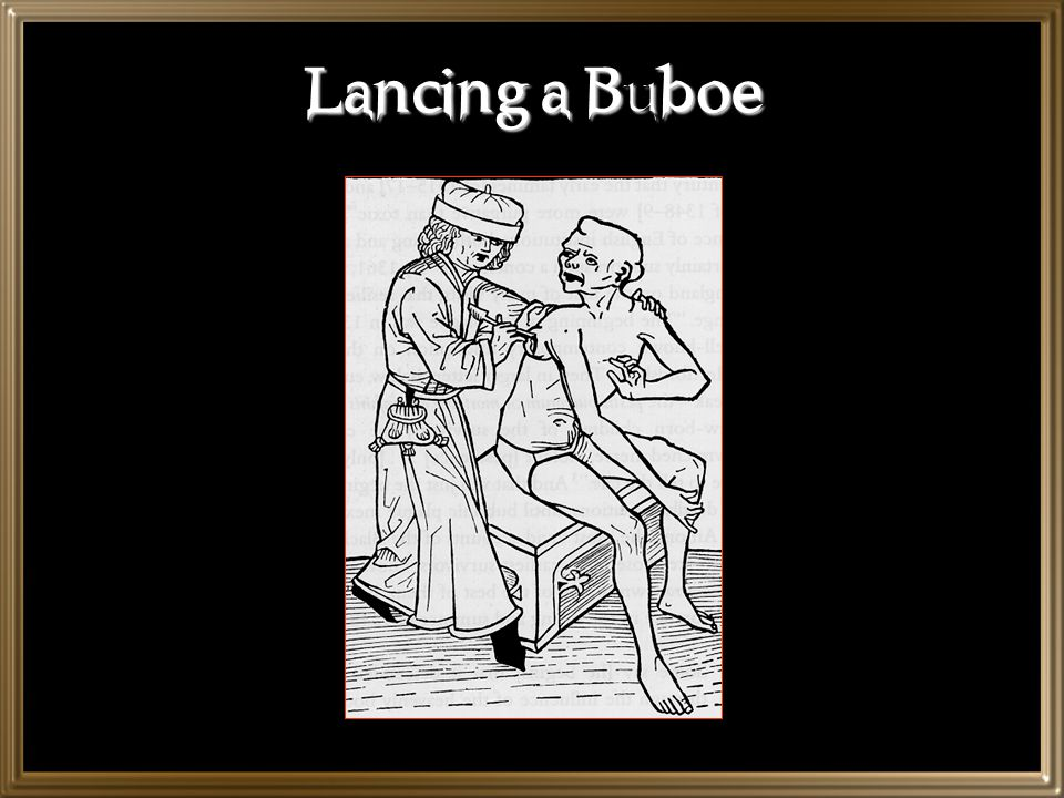 Lancing a Buboe