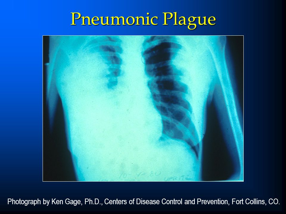 Pneumonic Plague CORE SLIDE. This chest roentgenogram shows right middle-and lower-lobe involvement in a patient with pneumonic plague.