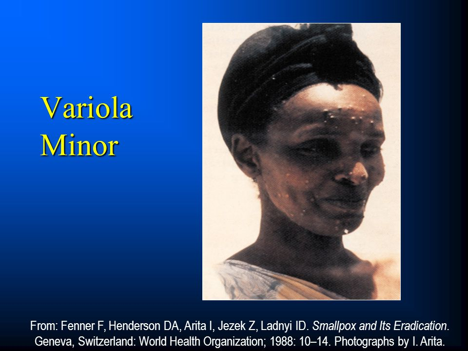 Variola Minor CORE SLIDE. Variola minor, or alastrim, was distinguished by milder systemic toxicity and more diminutive pox lesions.