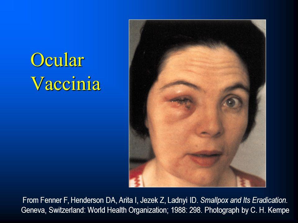 Ocular Vaccinia CORE SLIDE.
