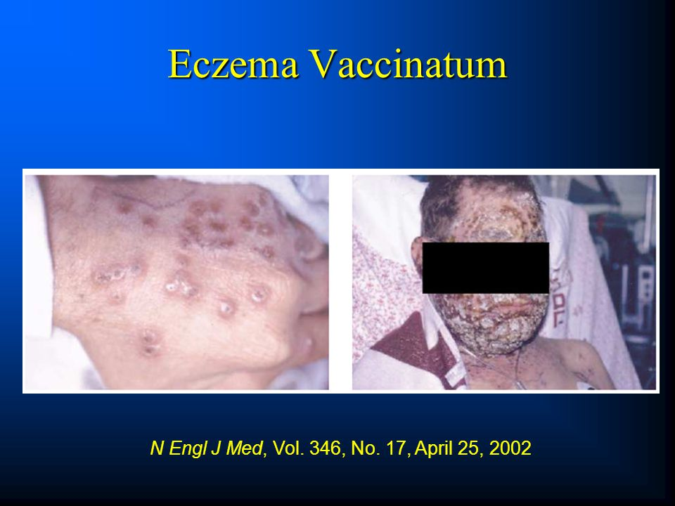 Eczema Vaccinatum N Engl J Med, Vol. 346, No. 17, April 25, 2002