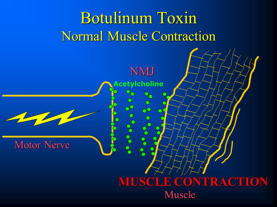 Botulinum Toxin Normal Muscle Contraction