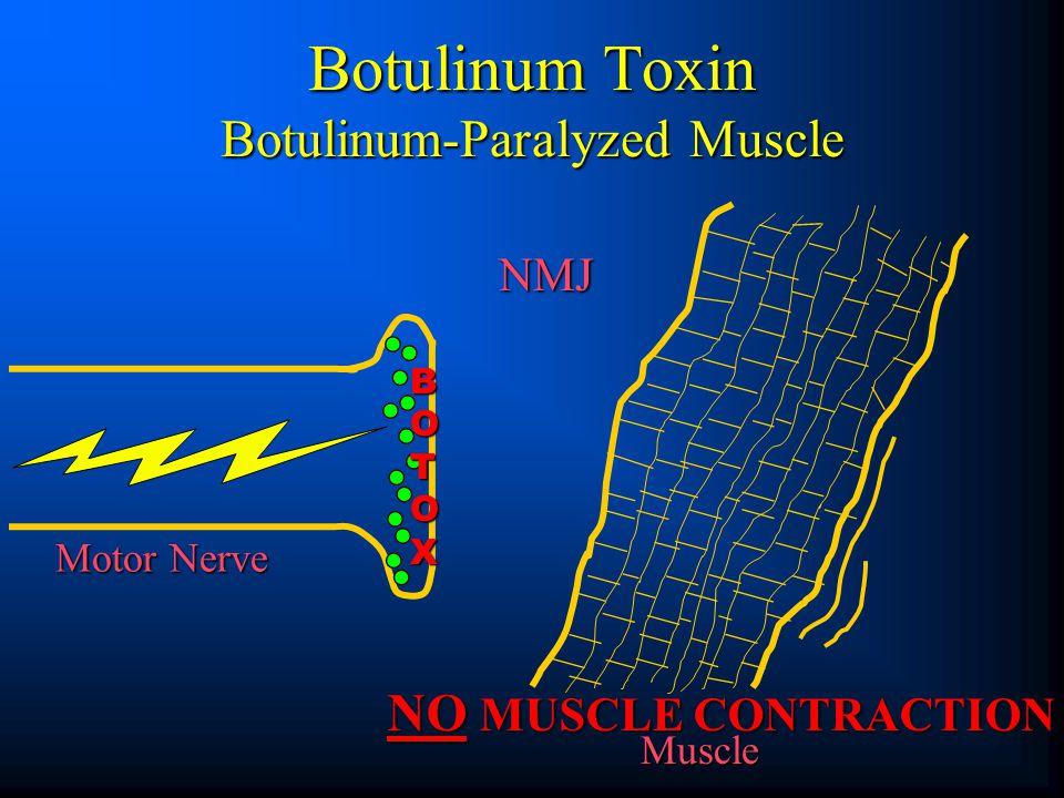 Botulinum Toxin Botulinum-Paralyzed Muscle