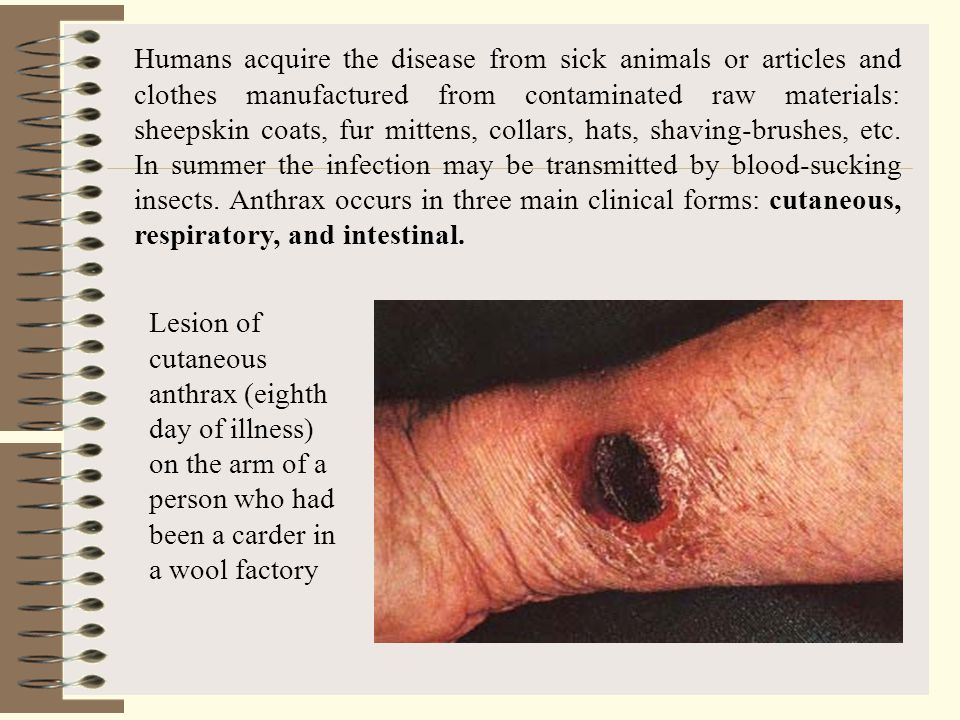 Humans acquire the disease from sick animals or articles and clothes manufactured from contaminated raw materials: sheepskin coats, fur mittens, collars, hats, shaving-brushes, etc. In summer the infection may be transmitted by blood-sucking insects. Anthrax occurs in three main clinical forms: cutaneous, respiratory, and intestinal.