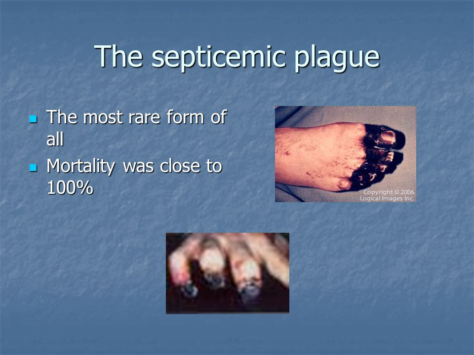 The septicemic plague The most rare form of all