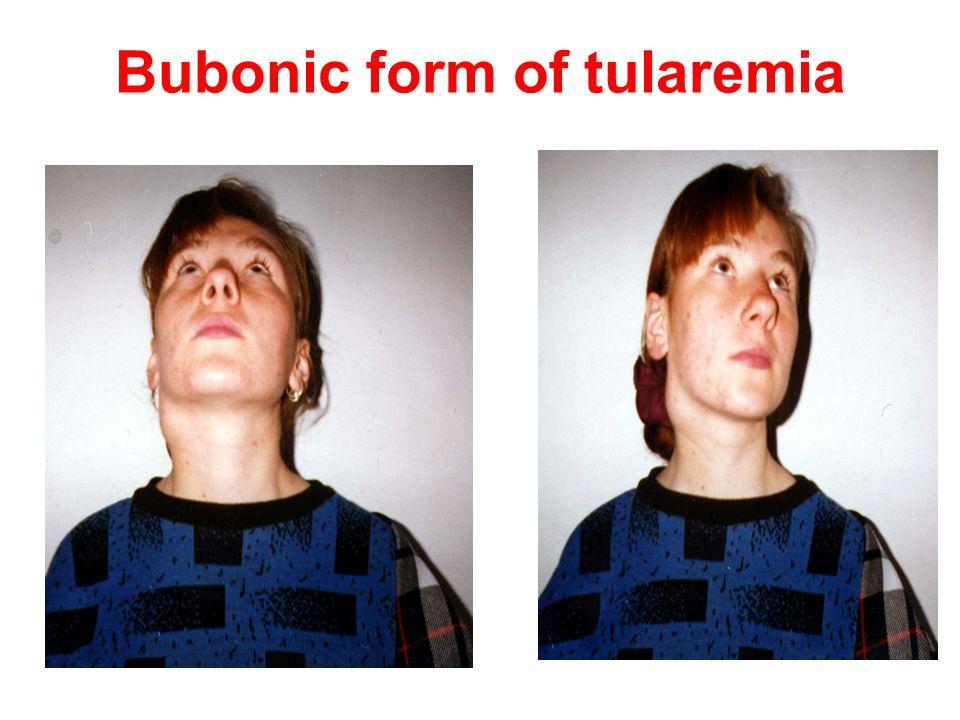 Bubonic form of tularemia