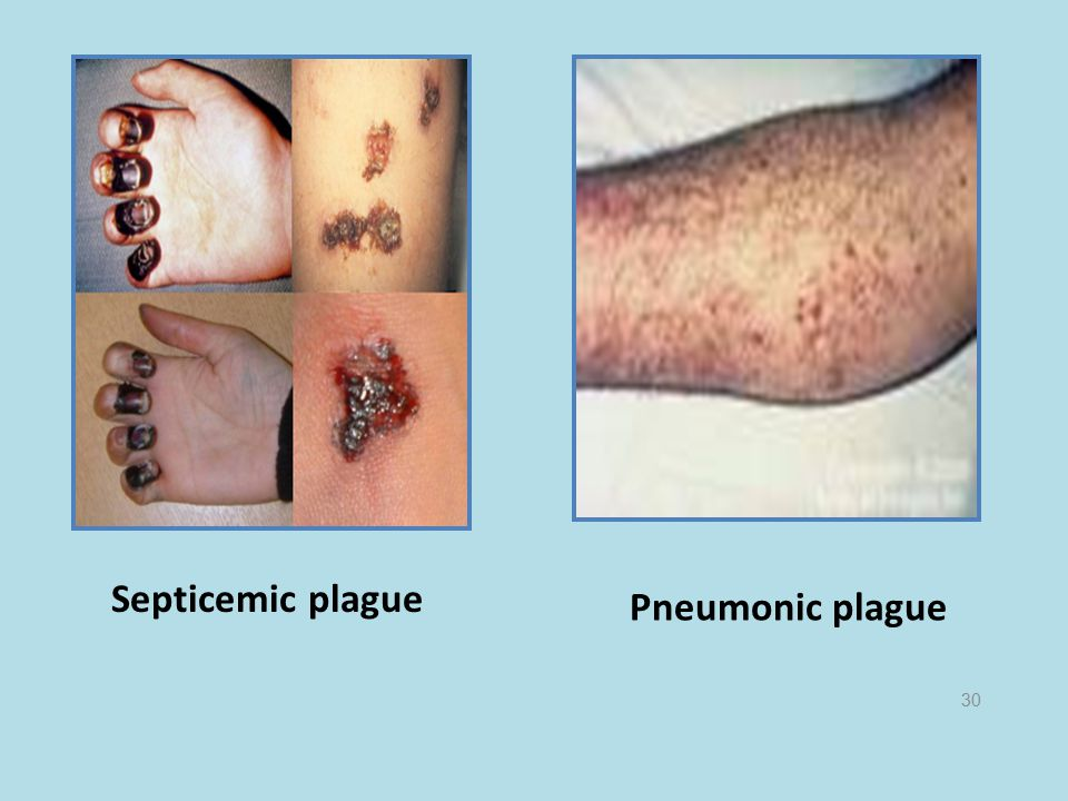 Septicemic plague Pneumonic plague