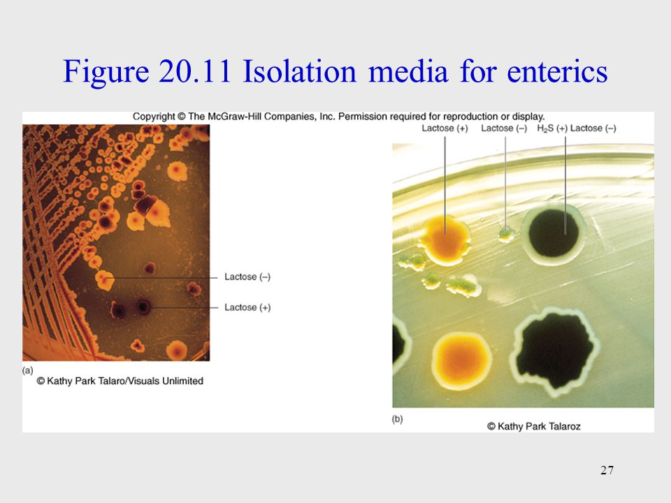 Figure 20.11 Isolation media for enterics