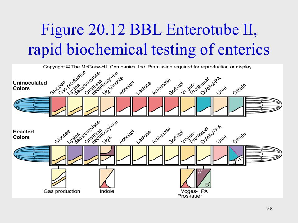 Figure 20.12 BBL Enterotube II, rapid biochemical testing of enterics