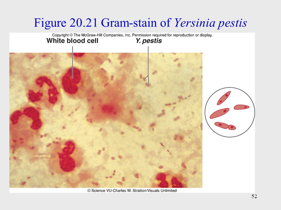Figure 20.21 Gram-stain of Yersinia pestis