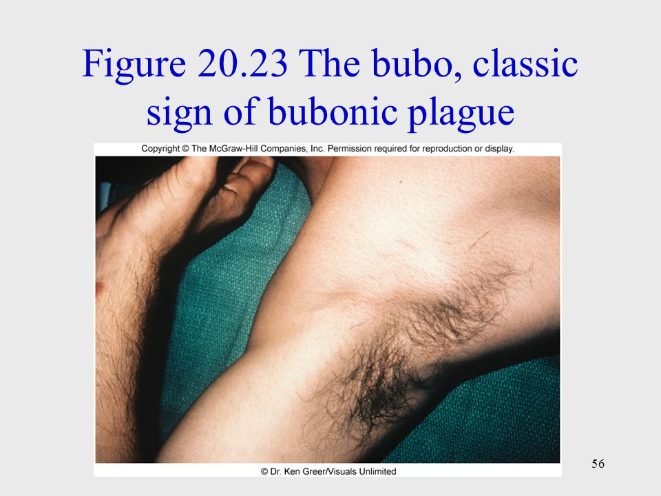 Figure 20.23 The bubo, classic sign of bubonic plague