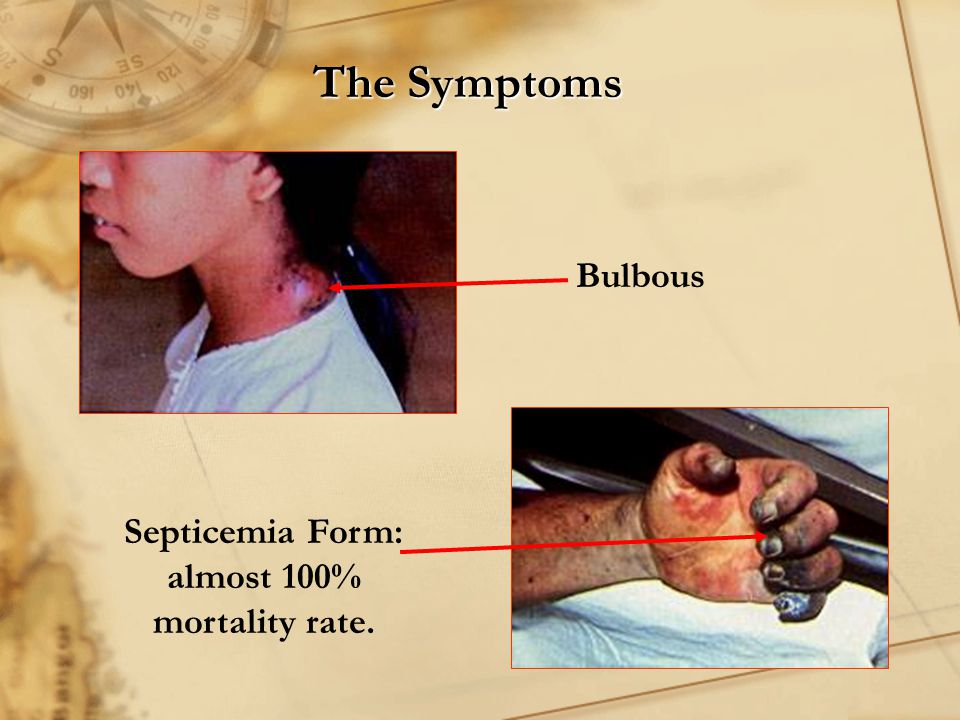 Septicemia Form: almost 100% mortality rate.