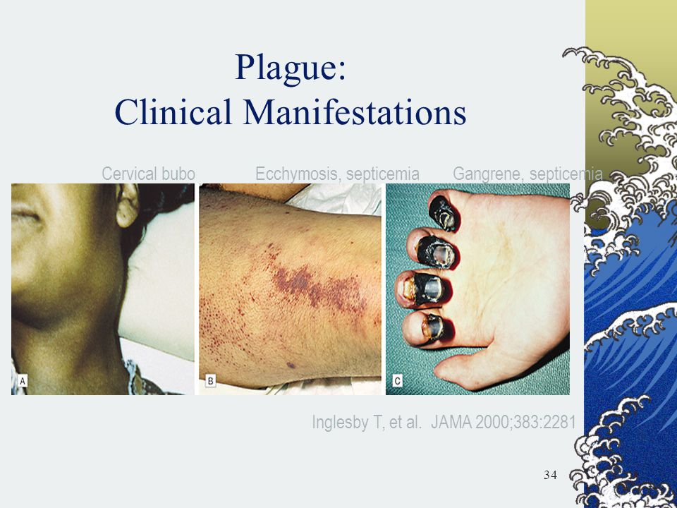 Plague: Clinical Manifestations