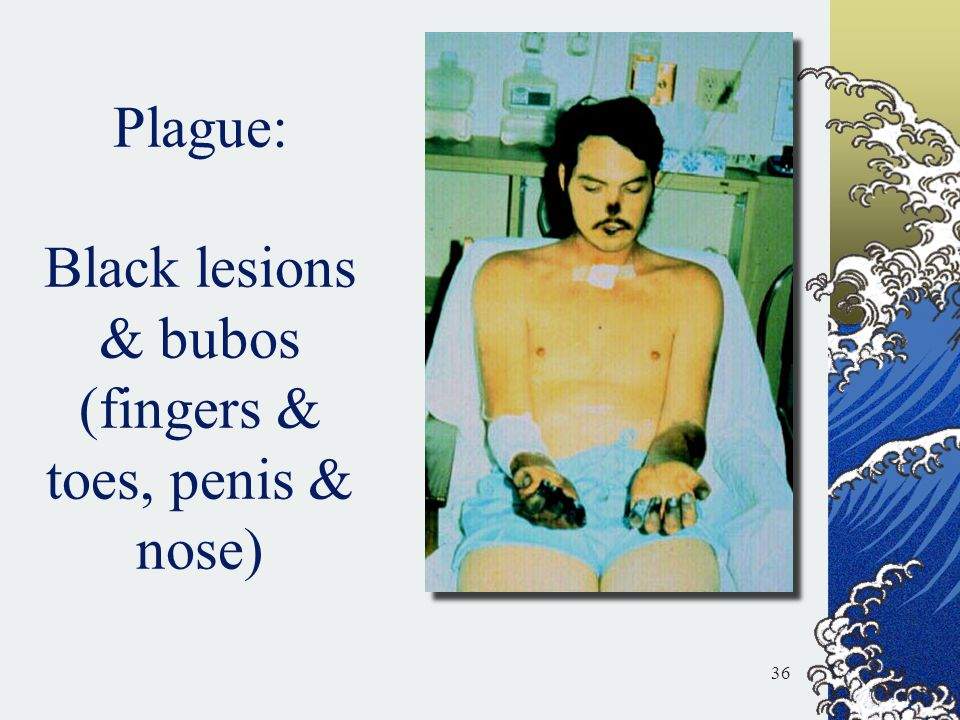 Plague: Black lesions & bubos (fingers & toes, penis & nose)