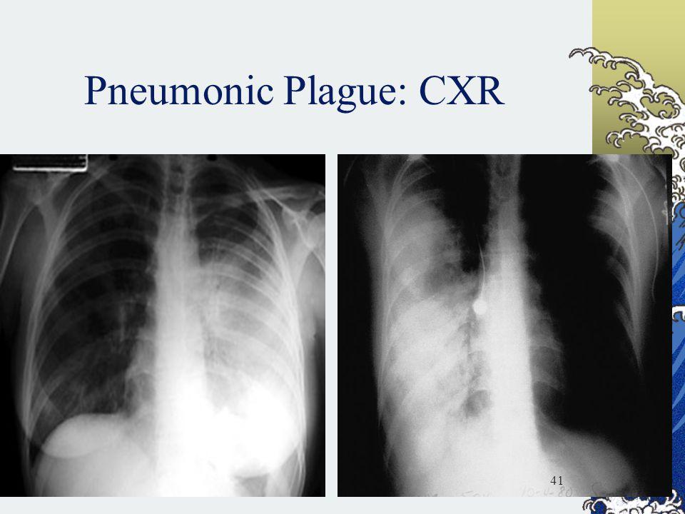 Pneumonic Plague: CXR