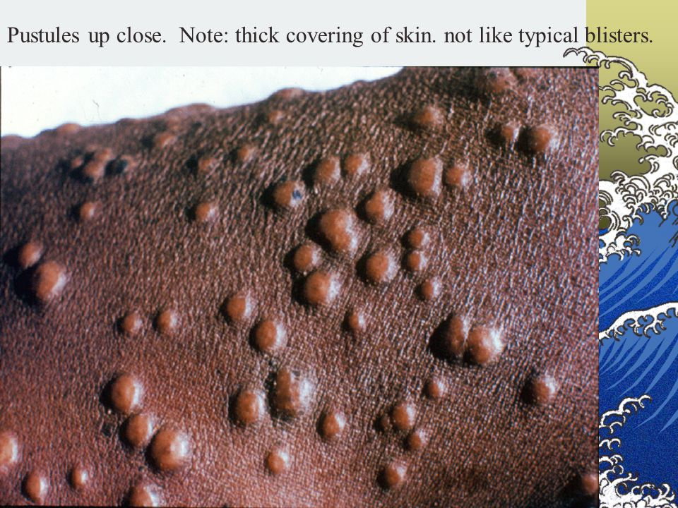 Pustules up close. Note: thick covering of skin