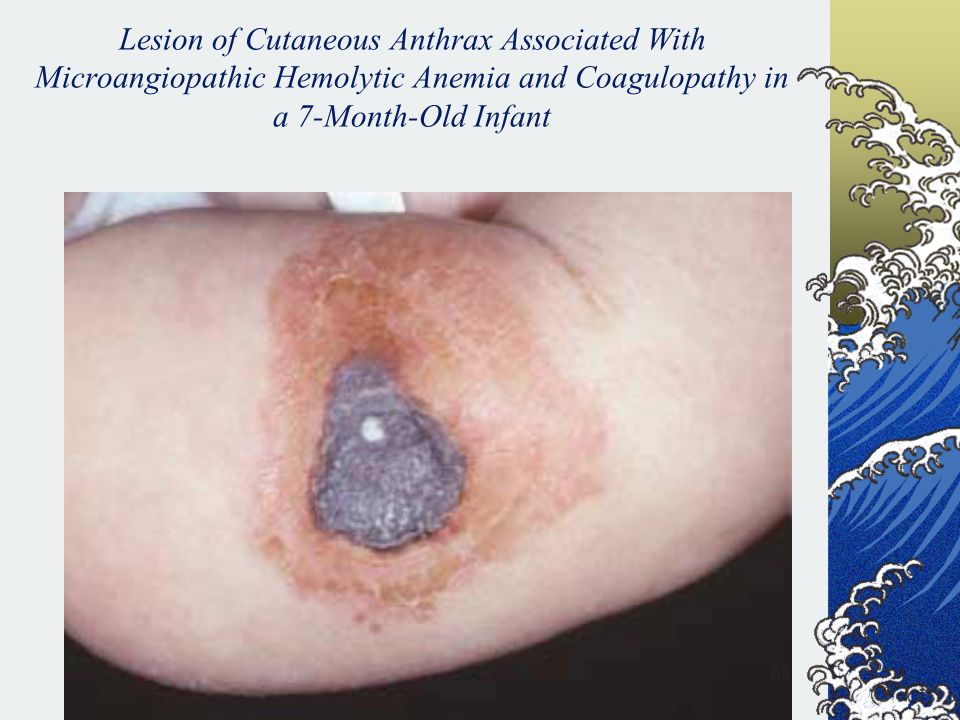 Lesion of Cutaneous Anthrax Associated With Microangiopathic Hemolytic Anemia and Coagulopathy in a 7-Month-Old Infant
