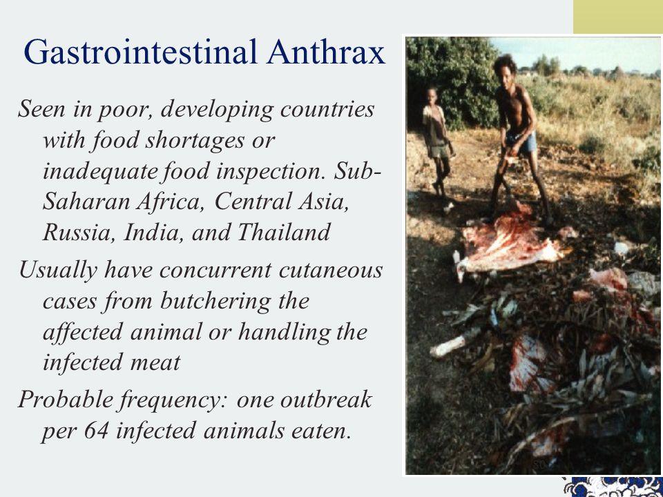 Gastrointestinal Anthrax