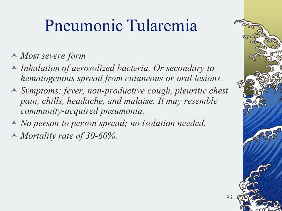 Pneumonic Tularemia Most severe form