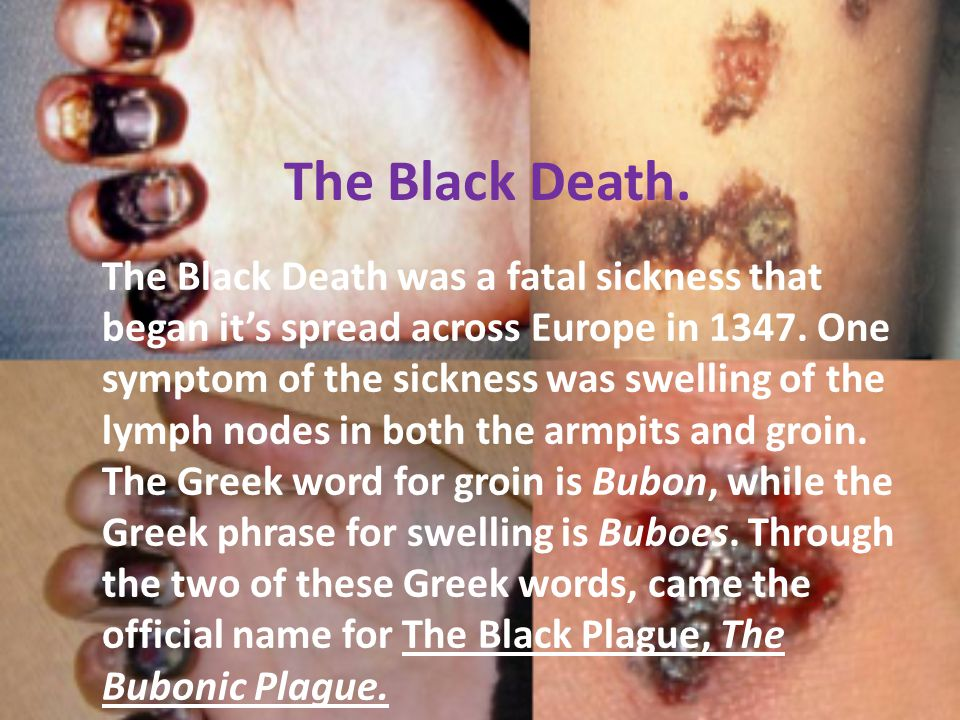 The Black Death.
