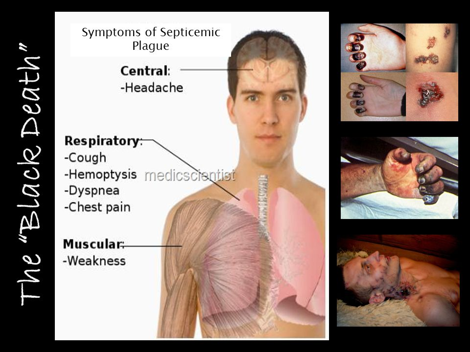 Symptoms of Septicemic Plague