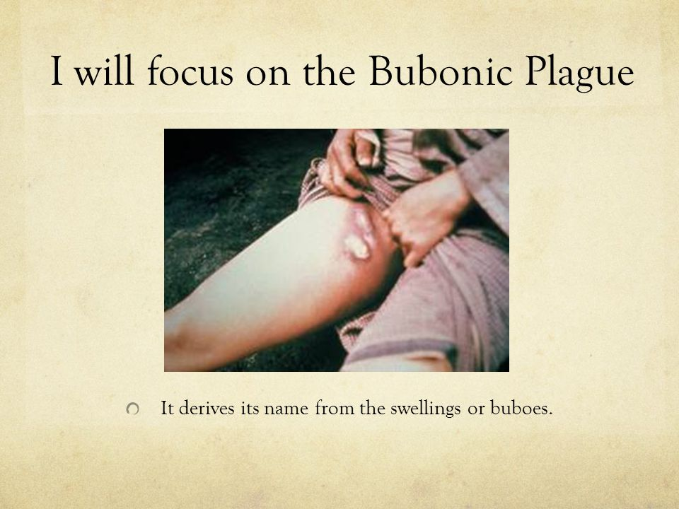 I will focus on the Bubonic Plague