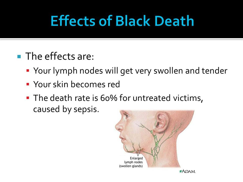 Effects of Black Death The effects are: