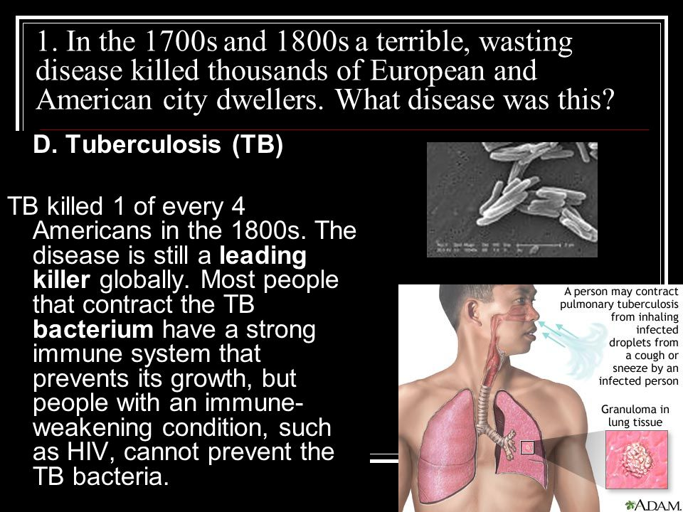 1. In the 1700s and 1800s a terrible, wasting disease killed thousands of European and American city dwellers. What disease was this