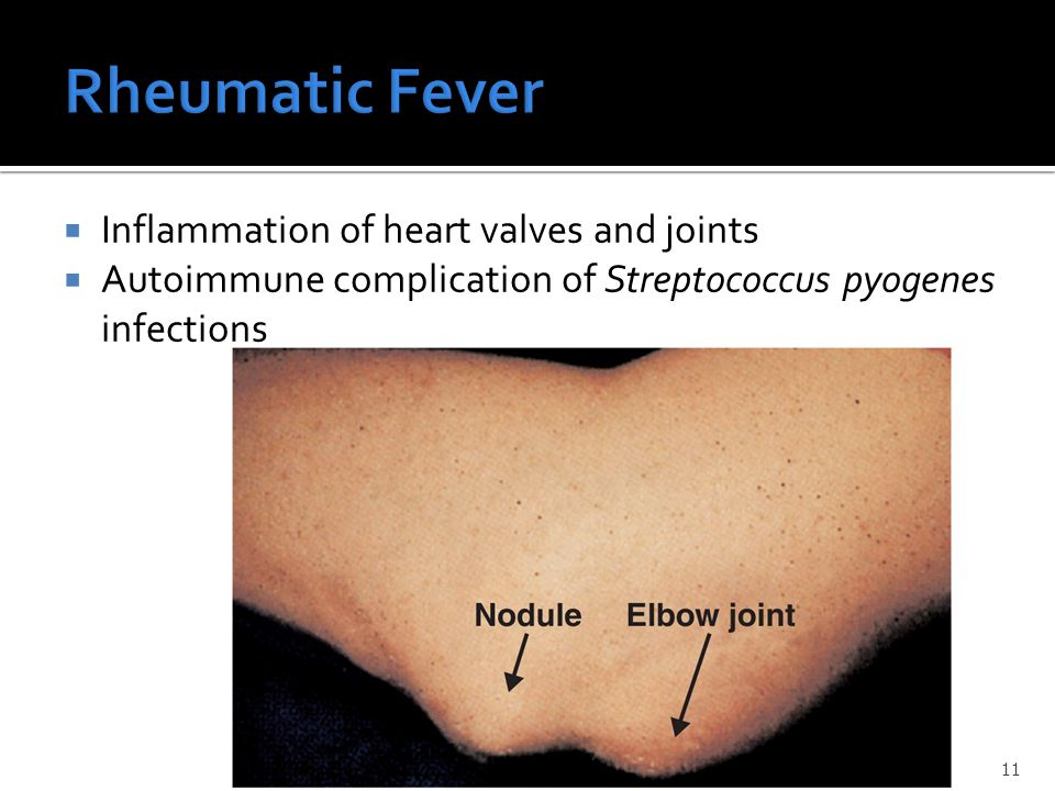 Rheumatic Fever Inflammation of heart valves and joints