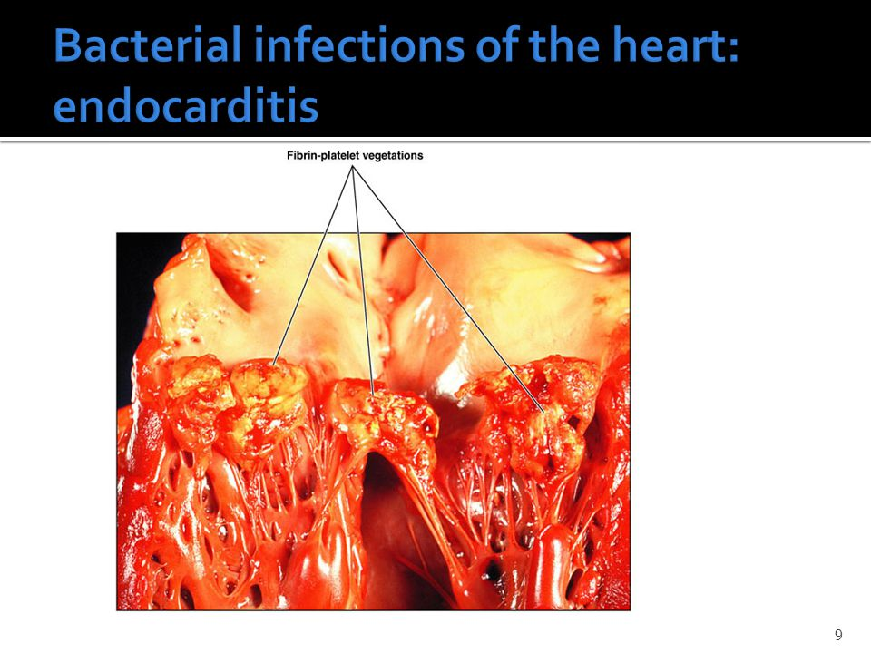 Bacterial infections of the heart: endocarditis