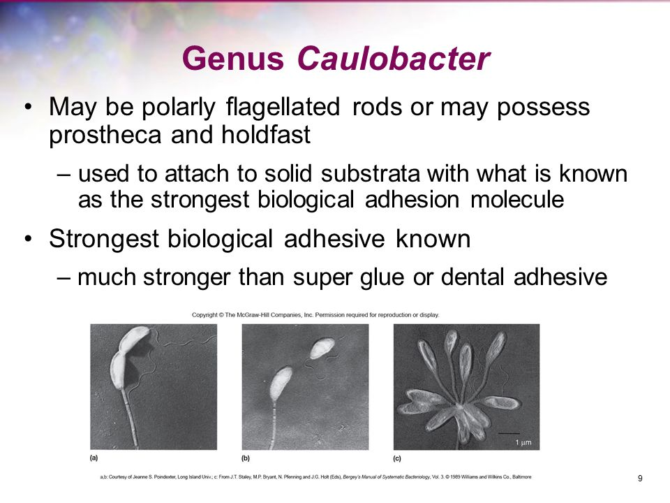 Genus Caulobacter May be polarly flagellated rods or may possess prostheca and holdfast.