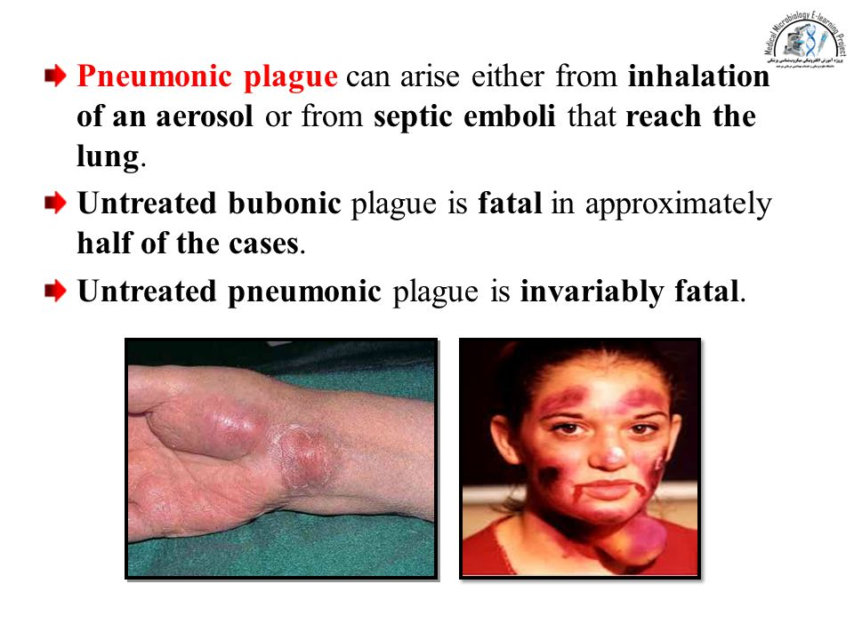 Pneumonic plague can arise either from inhalation of an aerosol or from septic emboli that reach the lung.