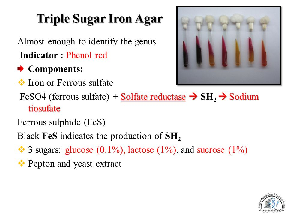 Triple Sugar Iron Agar Almost enough to identify the genus