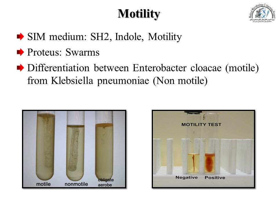 Motility SIM medium: SH2, Indole, Motility Proteus: Swarms