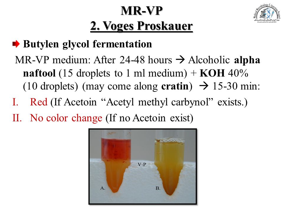 MR-VP 2. Voges Proskauer Butylen glycol fermentation