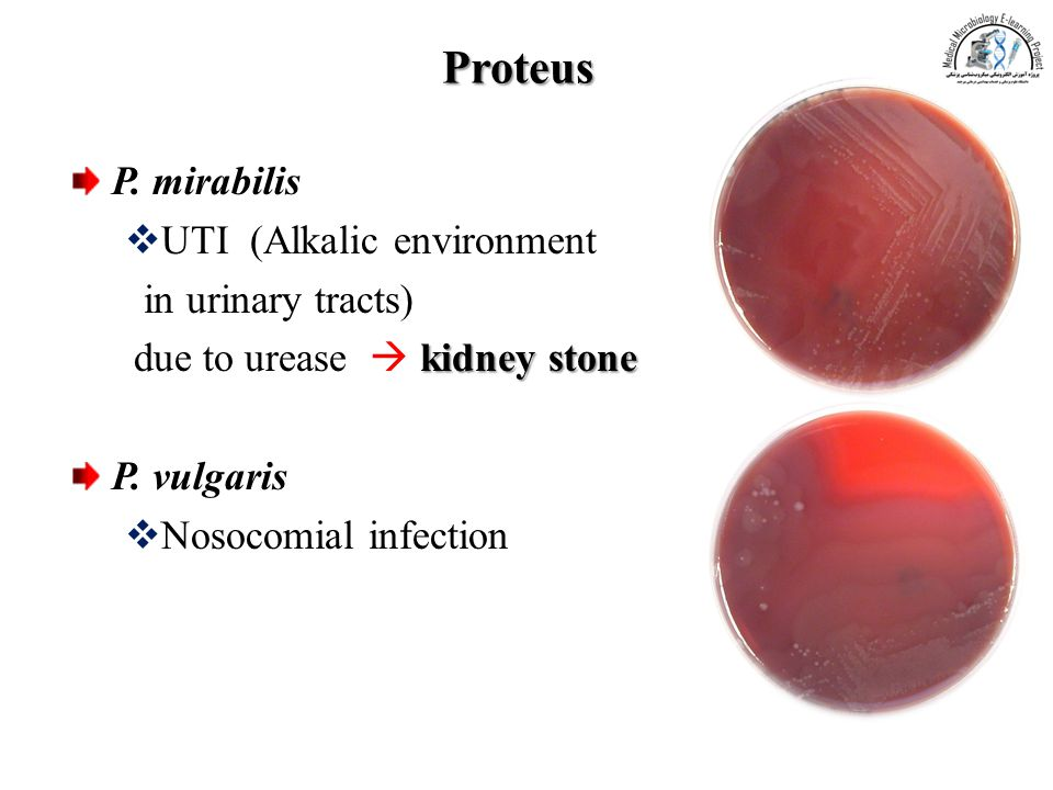Proteus P. mirabilis UTI (Alkalic environment in urinary tracts)