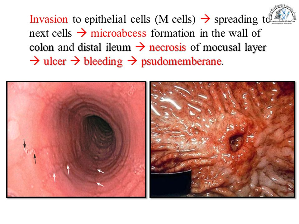 Invasion to epithelial cells (M cells)  spreading to next cells  microabcess formation in the wall of colon and distal ileum  necrosis of mocusal layer  ulcer  bleeding  psudomemberane.