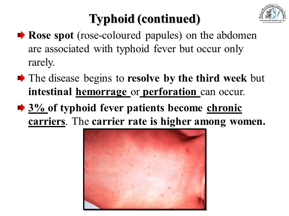 Typhoid (continued) Rose spot (rose-coloured papules) on the abdomen are associated with typhoid fever but occur only rarely.