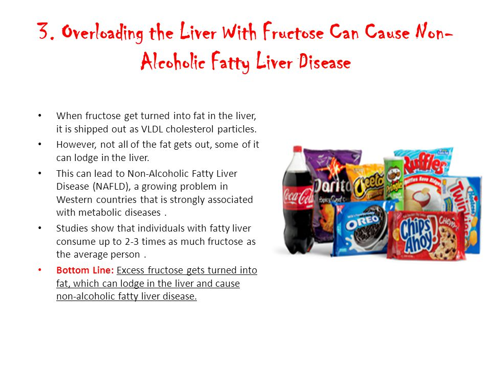 3. Overloading the Liver With Fructose Can Cause Non-Alcoholic Fatty Liver Disease