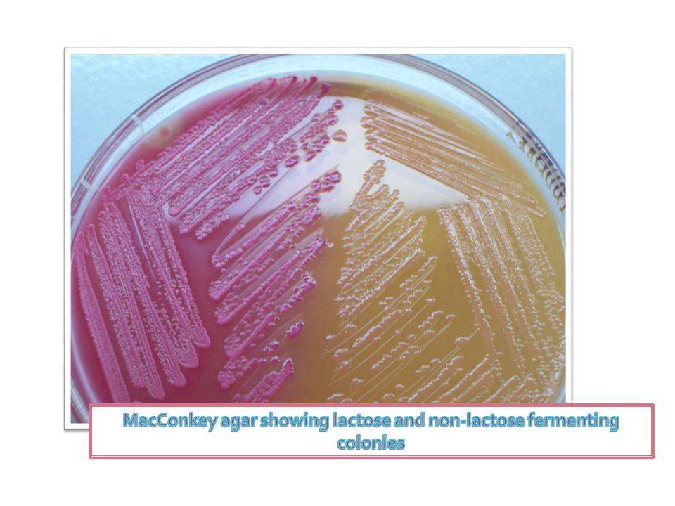 MacConkey agar showing lactose and non-lactose fermenting colonies